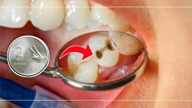 फक्त २ रुपये खर्च करून काढा आपल्या दातांमधील संपूर्ण कीड..!