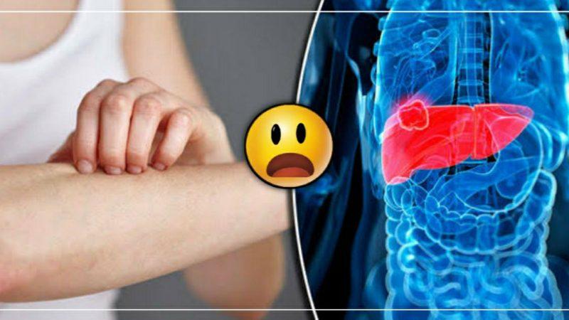हि लक्षणे दिसली तर समजून जा कि तुमचे लिव्हर खराब आहे., ताबडतोब डॉक्टरांची भेट घ्या..!