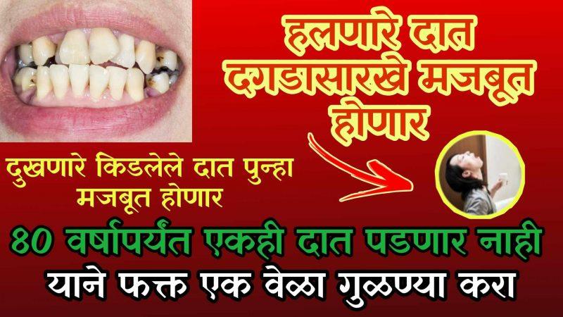गुळण्या करून दातातील कीड चुटकीत करा बाहेर; ८० वर्षापर्यंत एकही दात पडणार नाही.!